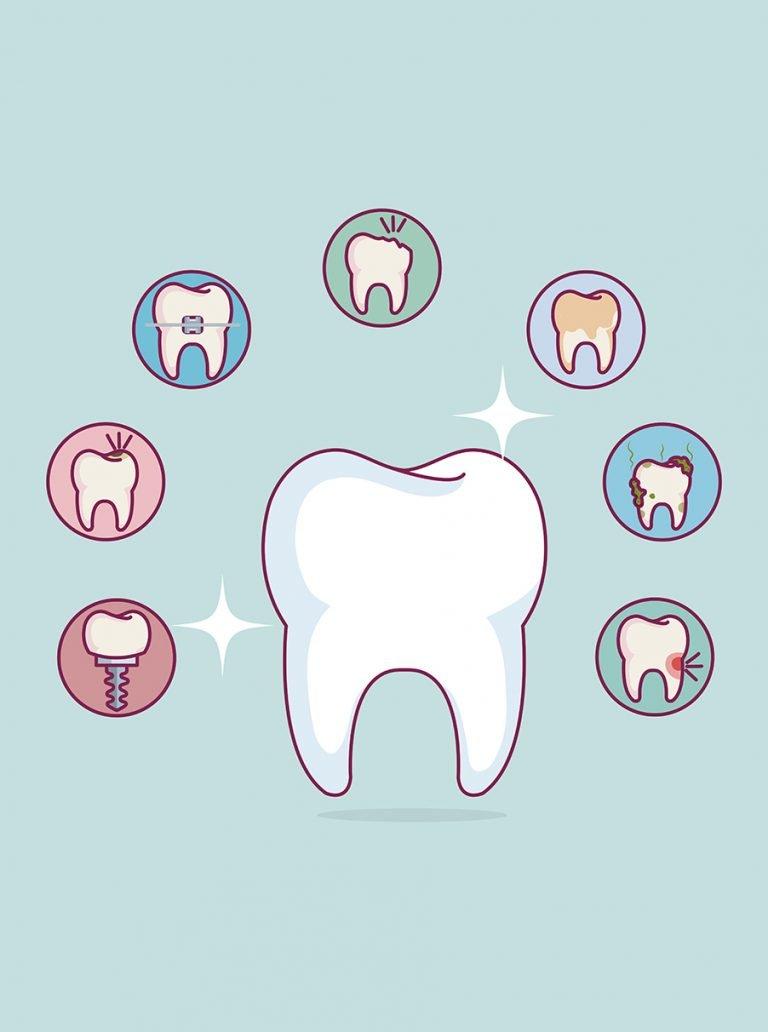 Tooth Check-ups | Sosdentist